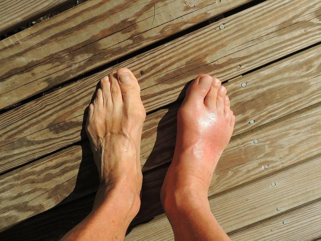 Consejos para curar un esguince de tobillo